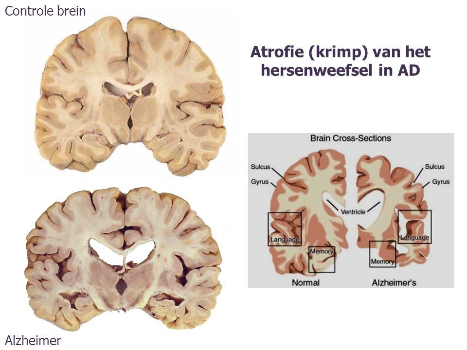 Atrofie (krimp) van het hersenweefsel in AD Controle brein Alzheimer