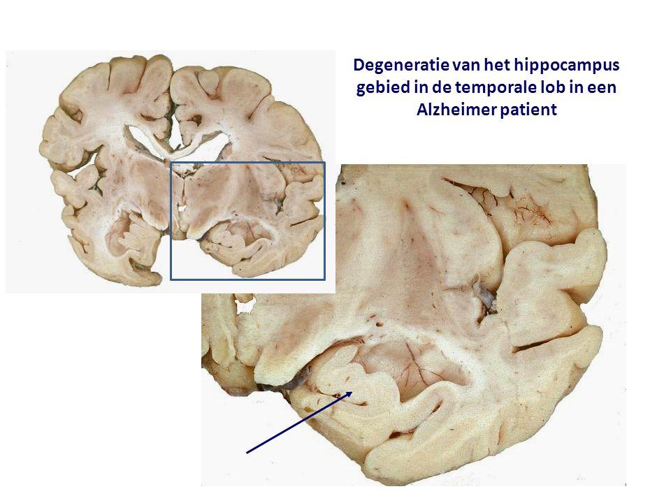 Degeneratie van het hippocampus gebied in de temporale lob in een Alzheimer patient