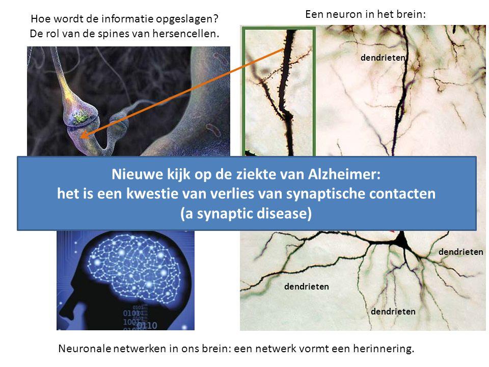 Hoe wordt de informatie opgeslagen.De rol van de spines van hersencellen.