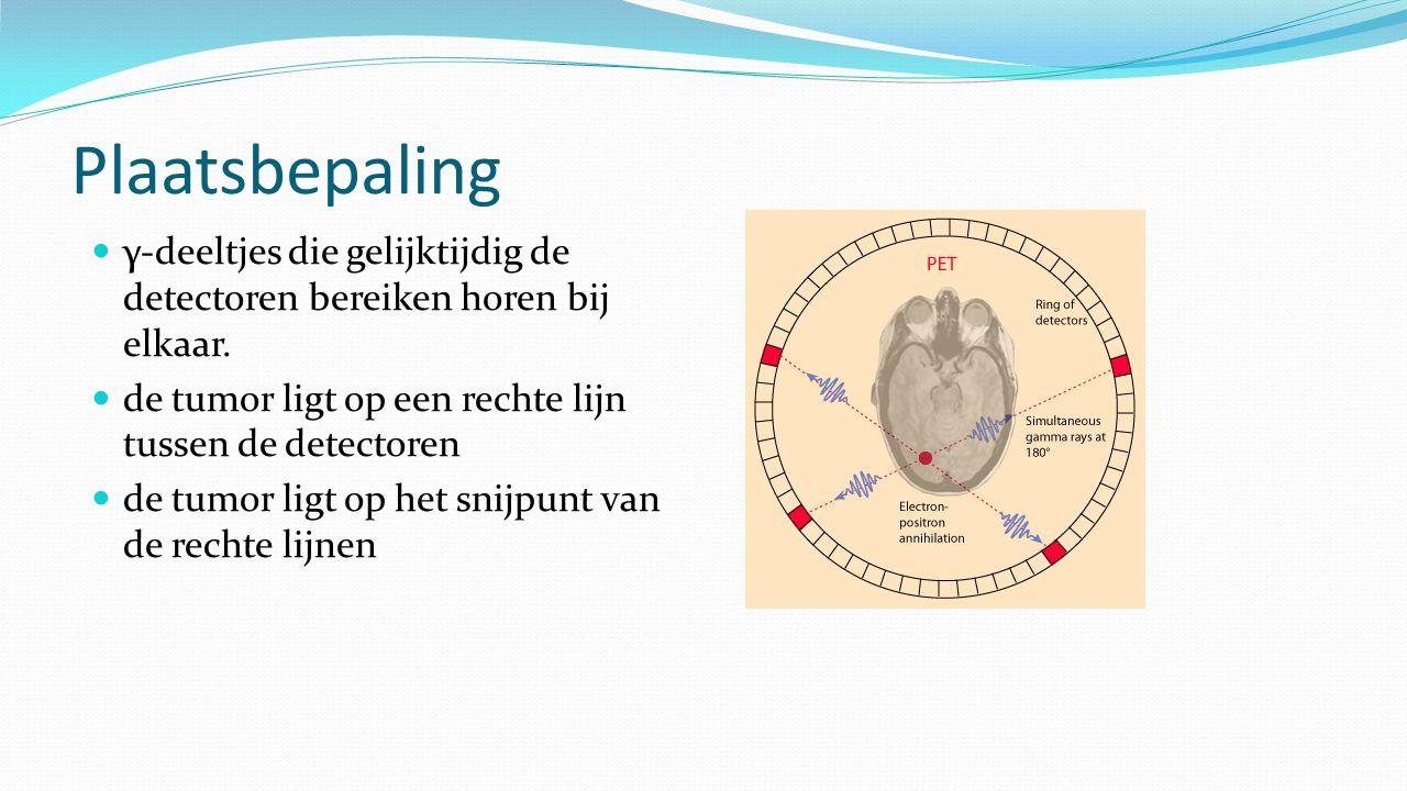 Plaatsbepaling γ-deeltjes die gelijktijdig de detectoren bereiken horen bij elkaar. de tumor ligt op een rechte lijn tussen de detectoren de tumor lig