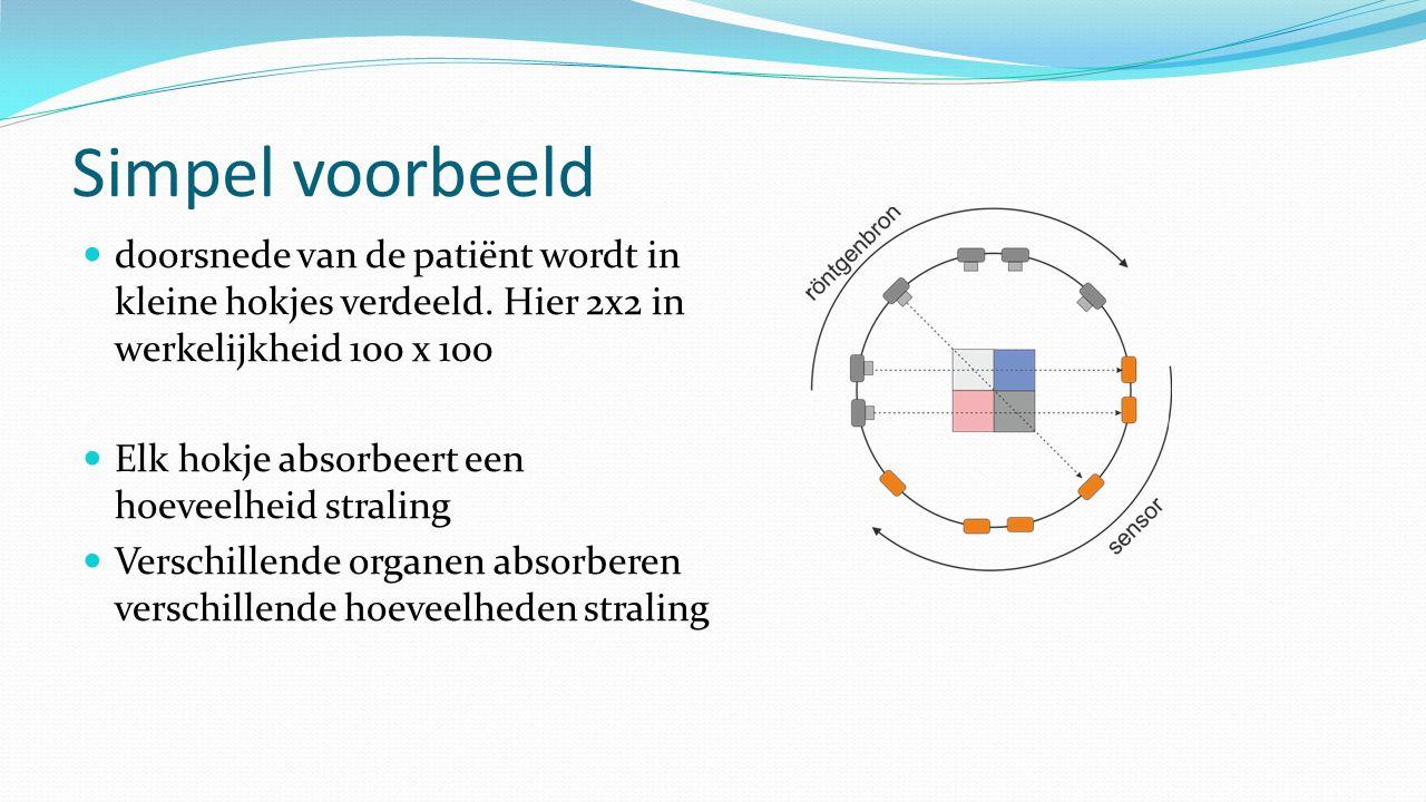 Simpel voorbeeld doorsnede van de patiënt wordt in kleine hokjes verdeeld. Hier 2x2 in werkelijkheid 100 x 100 Elk hokje absorbeert een hoeveelheid st