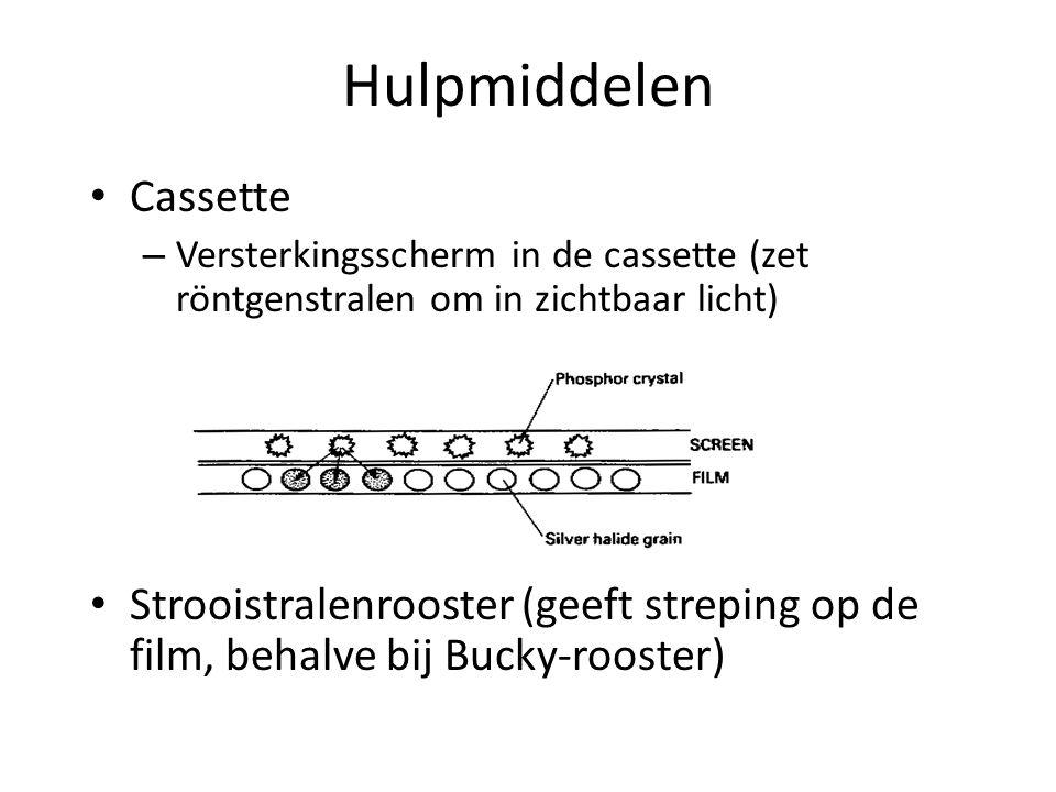 Hulpmiddelen Cassette – Versterkingsscherm in de cassette (zet röntgenstralen om in zichtbaar licht) Strooistralenrooster (geeft streping op de film,