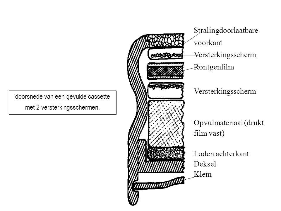 19 Stralingdoorlaatbare voorkant Versterkingsscherm Röntgenfilm Versterkingsscherm Opvulmateriaal (drukt film vast) Loden achterkant Deksel Klem doors