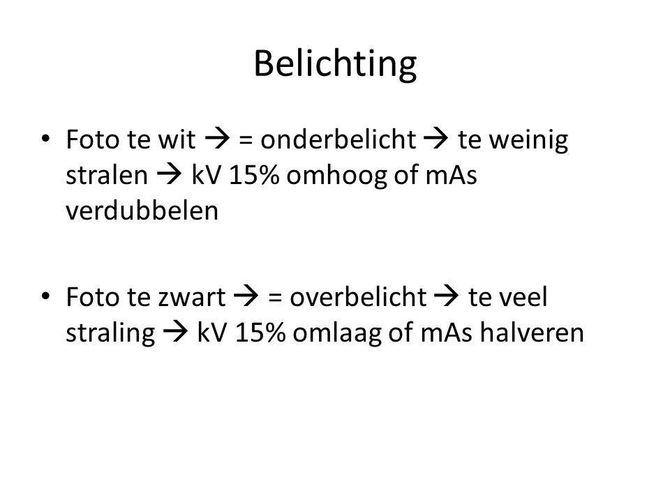 Belichting Foto te wit  = onderbelicht  te weinig stralen  kV 15% omhoog of mAs verdubbelen Foto te zwart  = overbelicht  te veel straling  kV 1