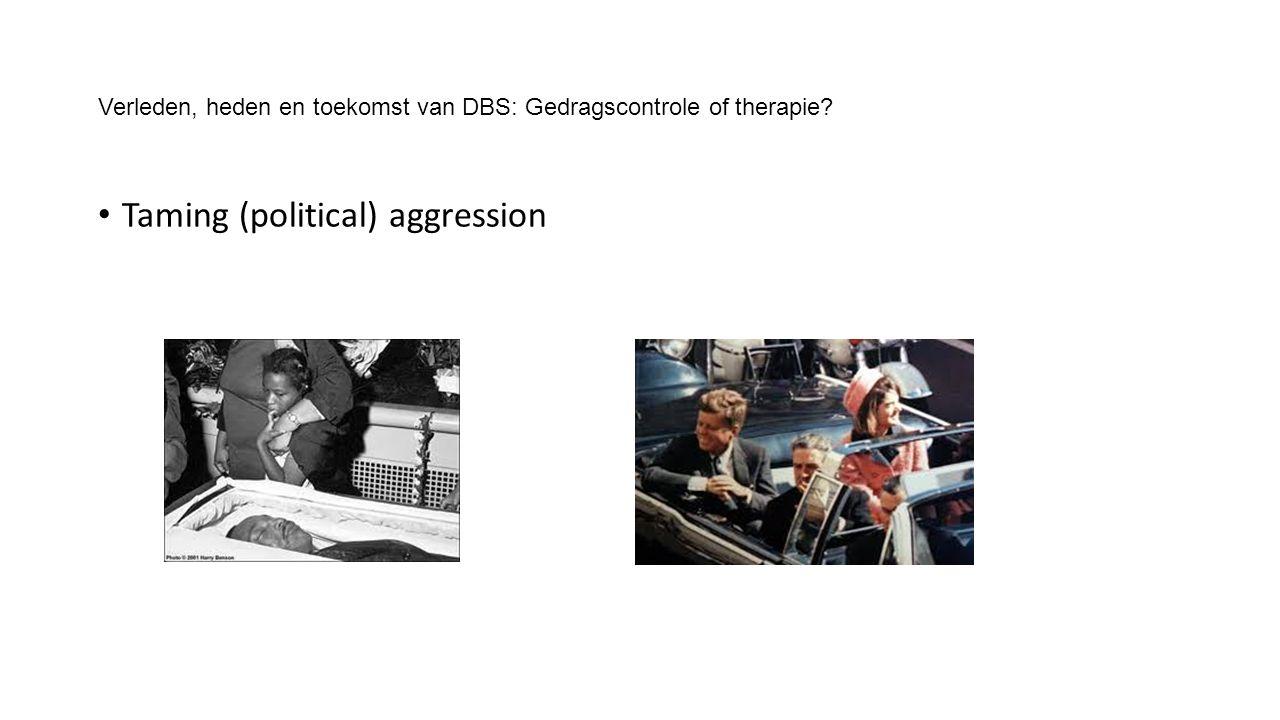 Verleden, heden en toekomst van DBS: Gedragscontrole of therapie Taming (political) aggression