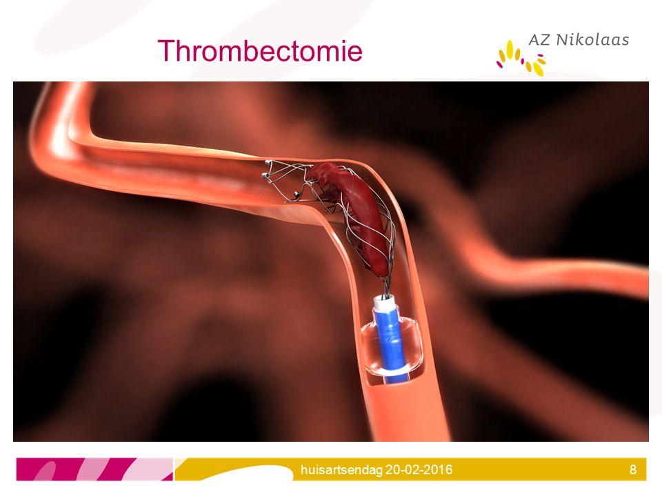 huisartsendag 20-02-20168 Thrombectomie