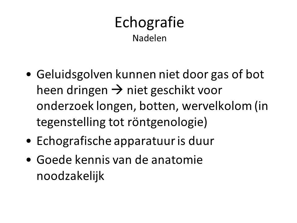 Echografie Nadelen Geluidsgolven kunnen niet door gas of bot heen dringen  niet geschikt voor onderzoek longen, botten, wervelkolom (in tegenstelling tot röntgenologie) Echografische apparatuur is duur Goede kennis van de anatomie noodzakelijk