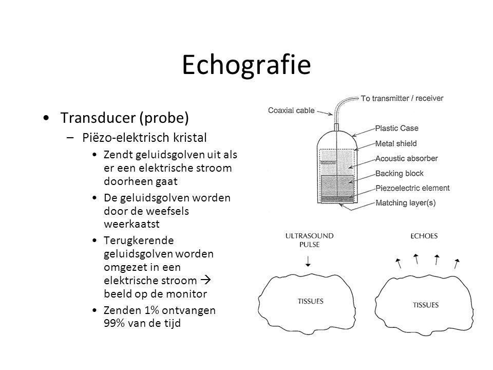 Echografie Transducer (probe) –Piëzo-elektrisch kristal Zendt geluidsgolven uit als er een elektrische stroom doorheen gaat De geluidsgolven worden door de weefsels weerkaatst Terugkerende geluidsgolven worden omgezet in een elektrische stroom  beeld op de monitor Zenden 1% ontvangen 99% van de tijd