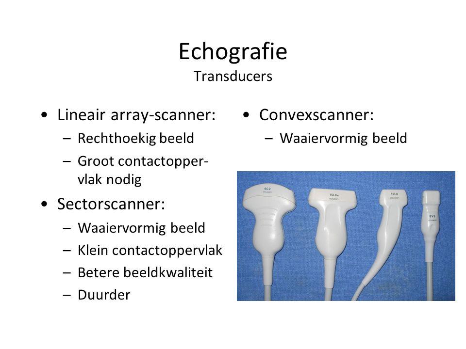 Echografie Transducers Lineair array-scanner: –Rechthoekig beeld –Groot contactopper- vlak nodig Sectorscanner: –Waaiervormig beeld –Klein contactoppervlak –Betere beeldkwaliteit –Duurder Convexscanner: –Waaiervormig beeld