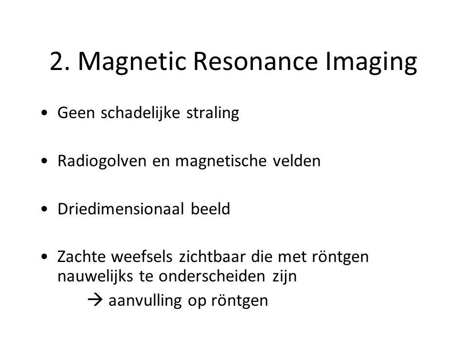 2. Magnetic Resonance Imaging Geen schadelijke straling Radiogolven en magnetische velden Driedimensionaal beeld Zachte weefsels zichtbaar die met rön