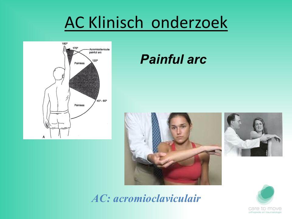 AC Klinisch onderzoek AC: acromioclaviculair Painful arc
