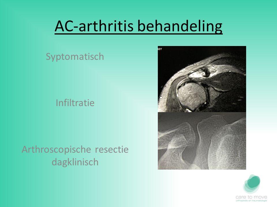 AC-arthritis behandeling Syptomatisch Infiltratie Arthroscopische resectie dagklinisch