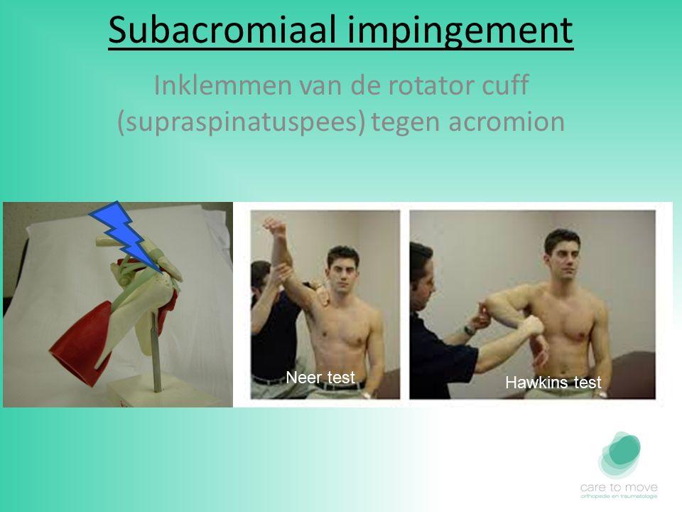 Subacromiaal impingement Inklemmen van de rotator cuff (supraspinatuspees) tegen acromion Neer test Hawkins test