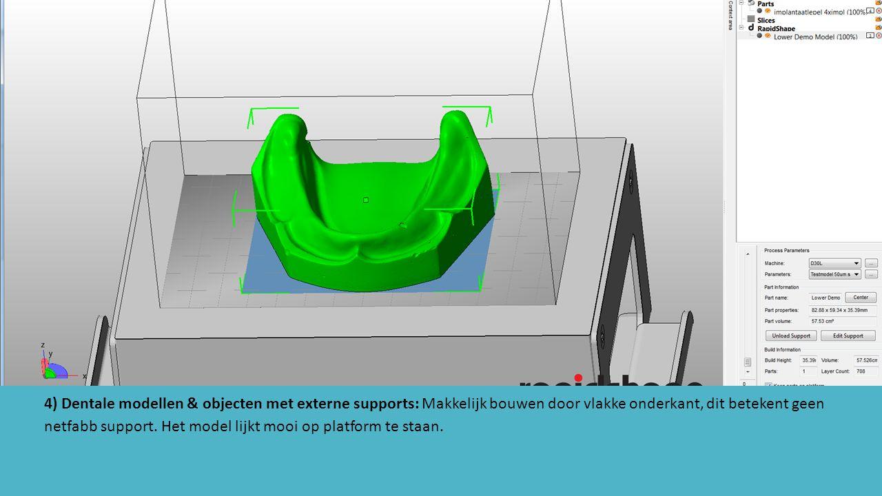 4) Dentale modellen & objecten met externe supports: Makkelijk bouwen door vlakke onderkant, dit betekent geen netfabb support.
