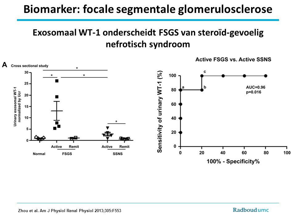 Biomarker: focale segmentale glomerulosclerose Exosomaal WT-1 onderscheidt FSGS van steroïd-gevoelig nefrotisch syndroom Zhou et al. Am J Physiol Rena