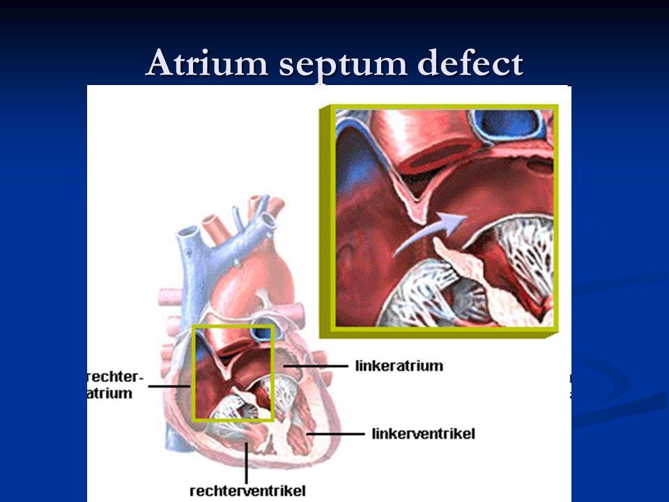 Atrium septum defect