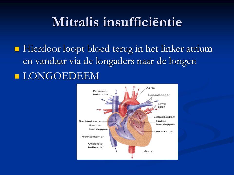 Mitralis insufficiëntie Hierdoor loopt bloed terug in het linker atrium en vandaar via de longaders naar de longen Hierdoor loopt bloed terug in het l