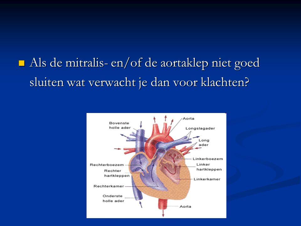 Als de mitralis- en/of de aortaklep niet goed Als de mitralis- en/of de aortaklep niet goed sluiten wat verwacht je dan voor klachten?