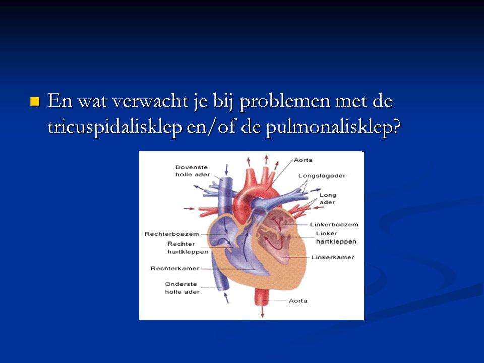 En wat verwacht je bij problemen met de tricuspidalisklep en/of de pulmonalisklep? En wat verwacht je bij problemen met de tricuspidalisklep en/of de