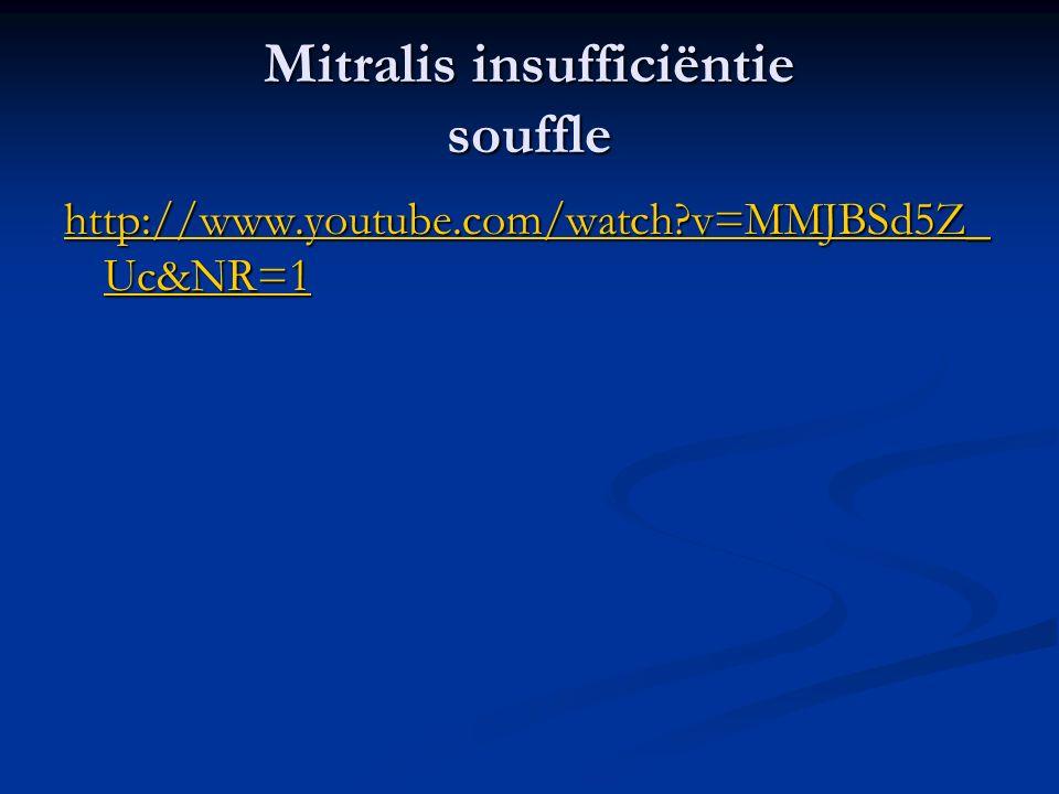 Mitralis insufficiëntie souffle http://www.youtube.com/watch?v=MMJBSd5Z_ Uc&NR=1 http://www.youtube.com/watch?v=MMJBSd5Z_ Uc&NR=1
