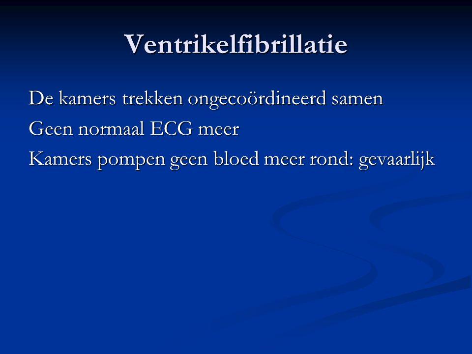 Ventrikelfibrillatie De kamers trekken ongecoördineerd samen Geen normaal ECG meer Kamers pompen geen bloed meer rond: gevaarlijk