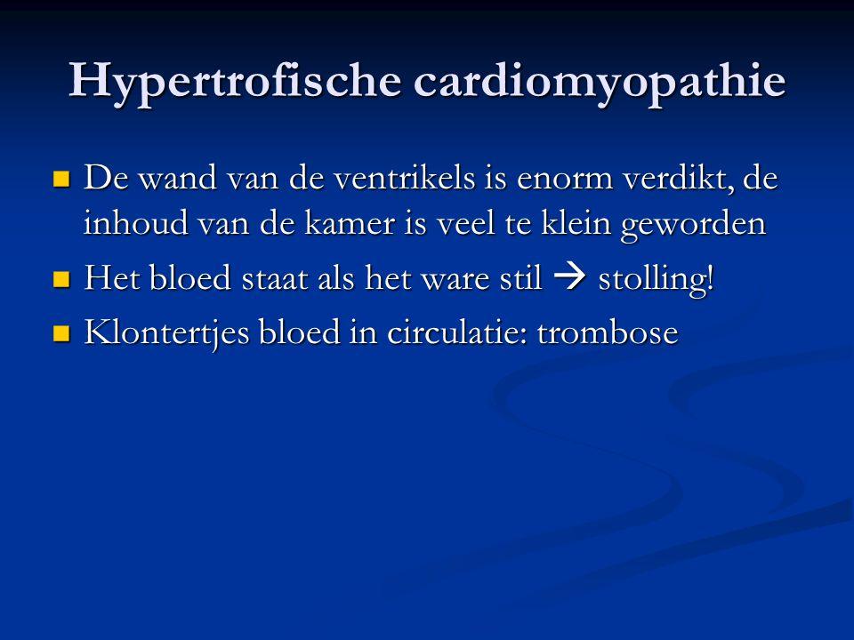 Hypertrofische cardiomyopathie De wand van de ventrikels is enorm verdikt, de inhoud van de kamer is veel te klein geworden De wand van de ventrikels
