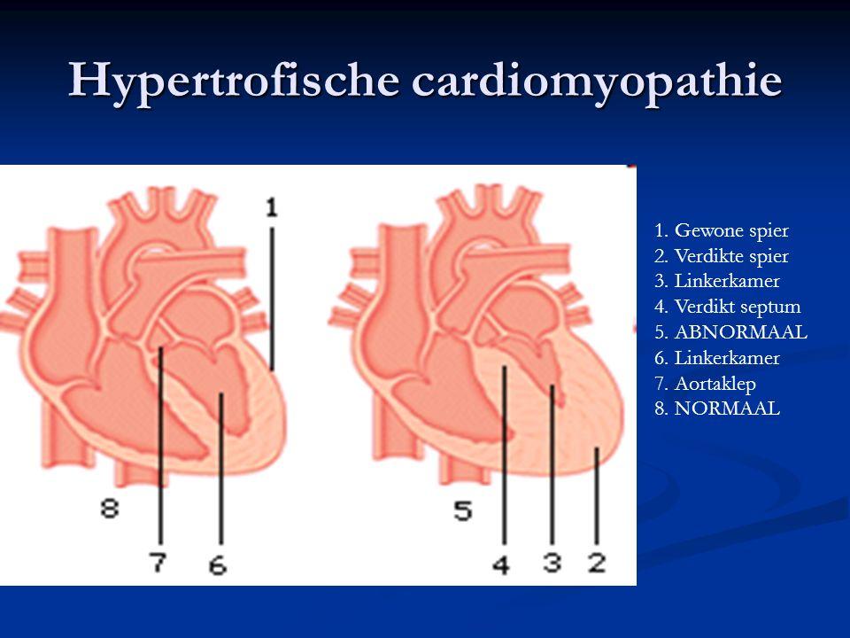 Hypertrofische cardiomyopathie 1. Gewone spier 2. Verdikte spier 3. Linkerkamer 4. Verdikt septum 5. ABNORMAAL 6. Linkerkamer 7. Aortaklep 8. NORMAAL