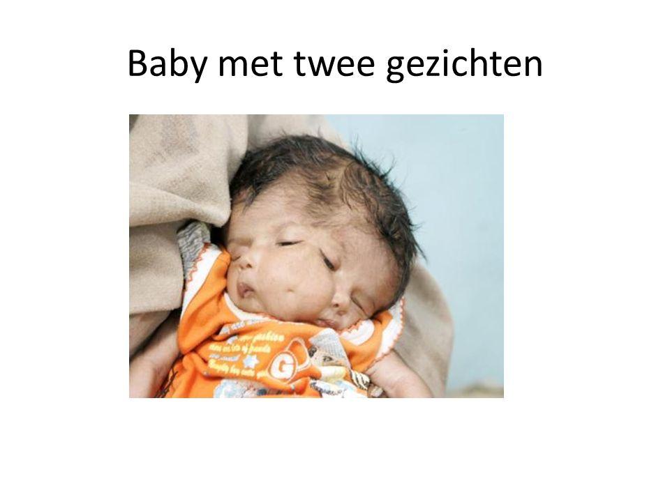 Baby met twee gezichten
