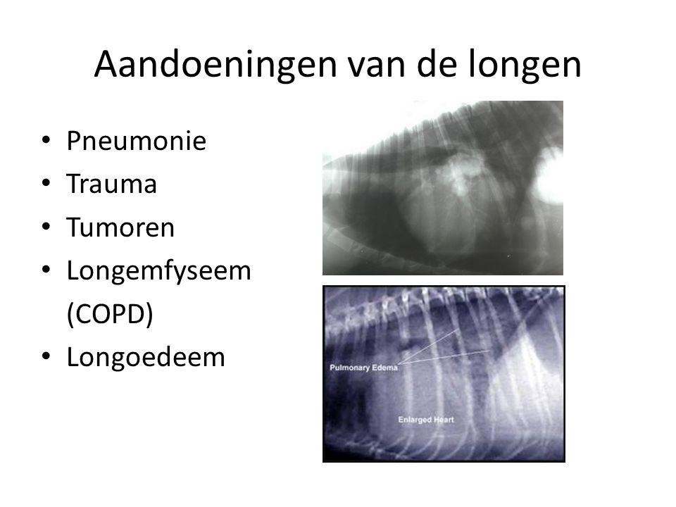 Aandoeningen van de longen Pneumonie Trauma Tumoren Longemfyseem (COPD) Longoedeem