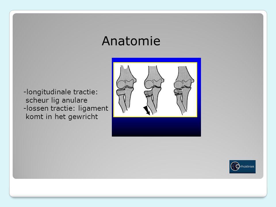 Anatomie -longitudinale tractie: scheur lig anulare -lossen tractie: ligament komt in het gewricht