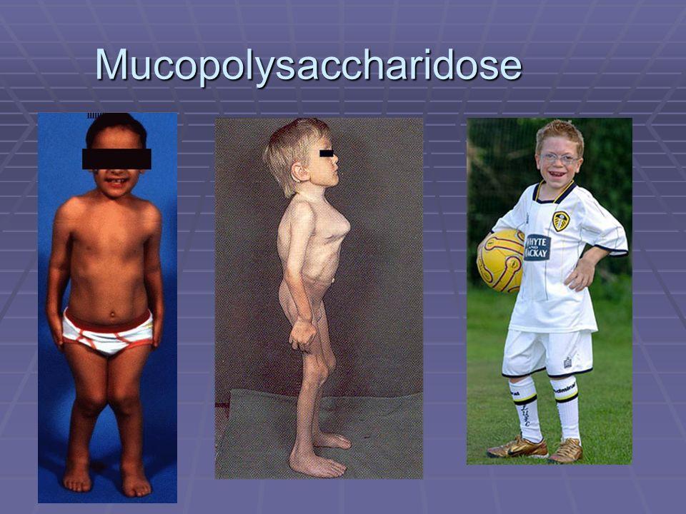 Mucopolysaccharidose