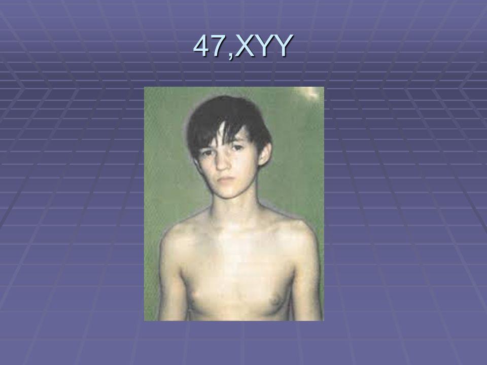 47,XYY