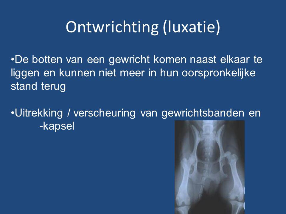 Ontwrichting (luxatie) De botten van een gewricht komen naast elkaar te liggen en kunnen niet meer in hun oorspronkelijke stand terug Uitrekking / verscheuring van gewrichtsbanden en -kapsel