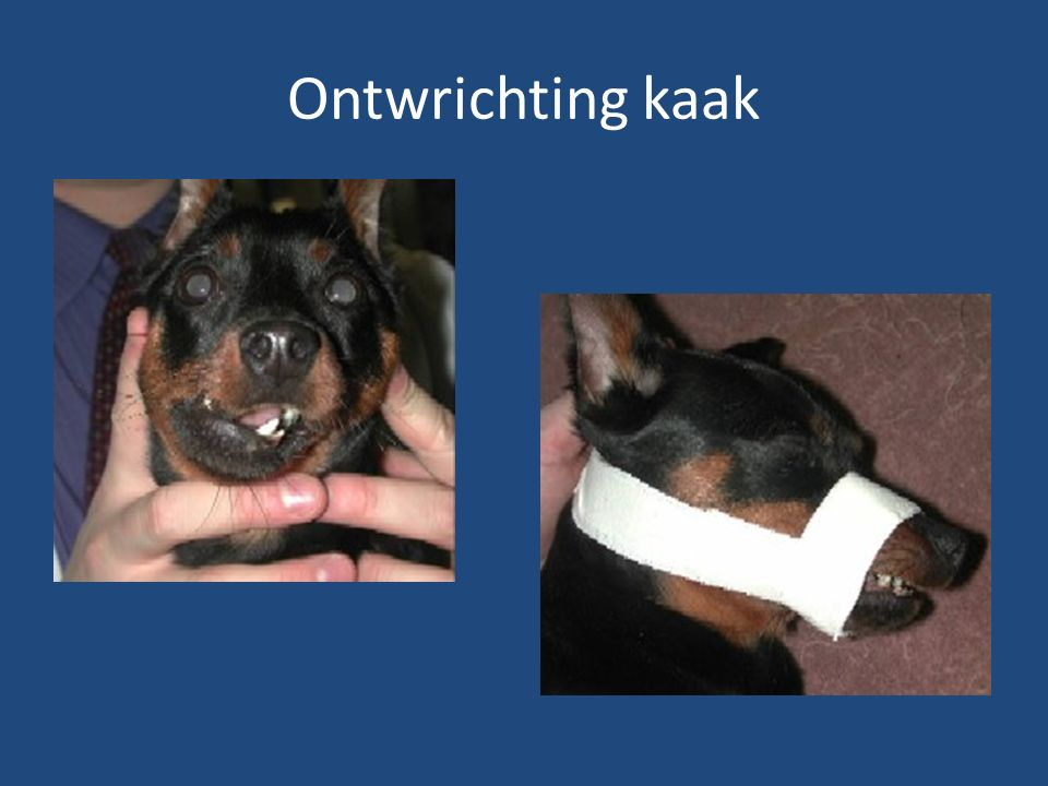 Ontwrichting kaak