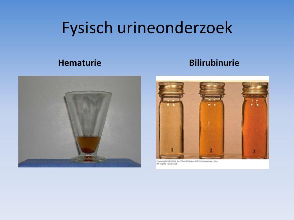Fysisch urineonderzoek HematurieBilirubinurie