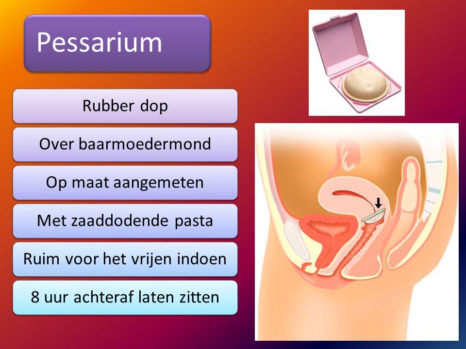 Pessarium Rubber dopOver baarmoedermondOp maat aangemetenMet zaaddodende pastaRuim voor het vrijen indoen8 uur achteraf laten zitten