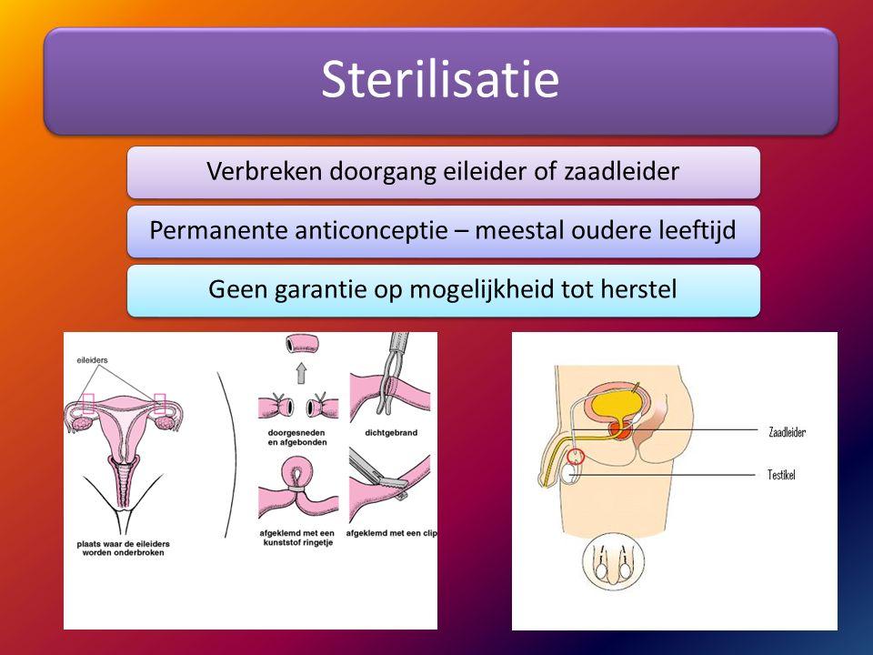Sterilisatie Verbreken doorgang eileider of zaadleiderPermanente anticonceptie – meestal oudere leeftijdGeen garantie op mogelijkheid tot herstel