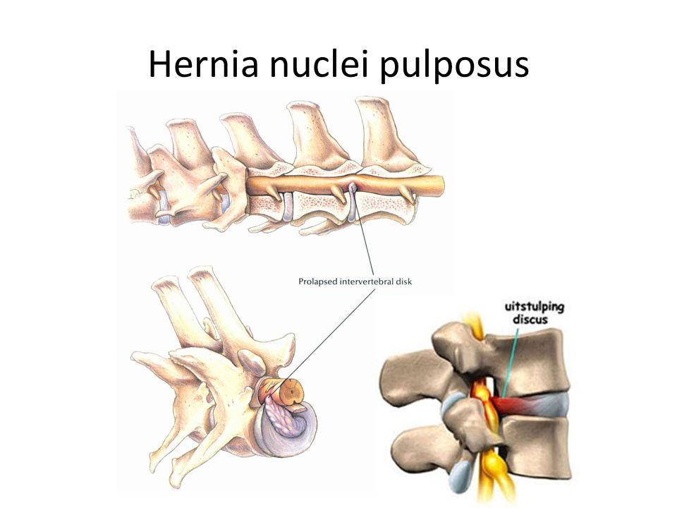 Hernia nuclei pulposus