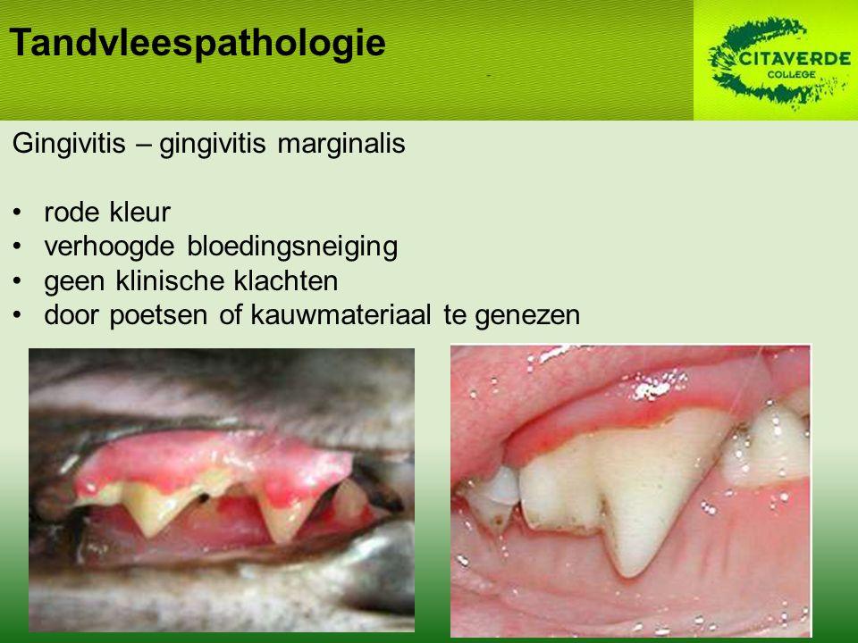 Tandvleespathologie Gingivitis – gingivitis marginalis rode kleur verhoogde bloedingsneiging geen klinische klachten door poetsen of kauwmateriaal te