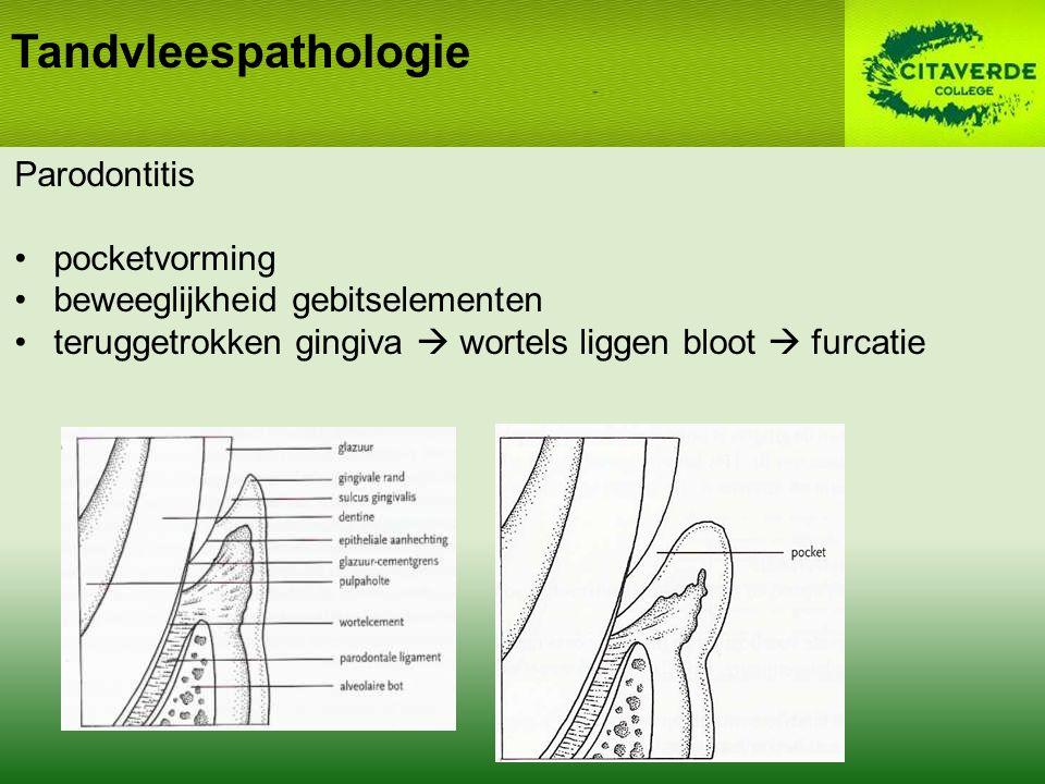 Tandvleespathologie Parodontitis pocketvorming beweeglijkheid gebitselementen teruggetrokken gingiva  wortels liggen bloot  furcatie