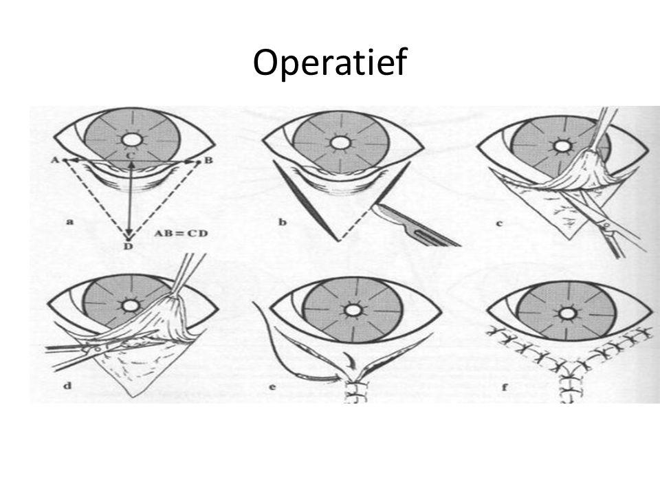 Operatief