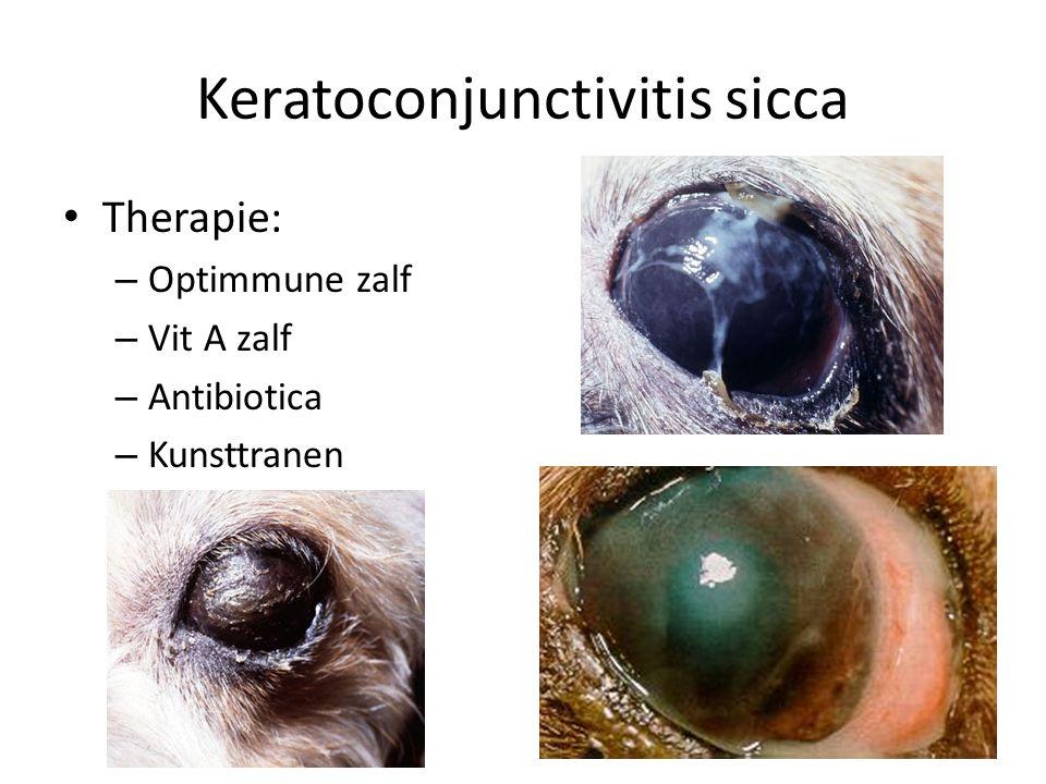 Keratoconjunctivitis sicca Therapie: – Optimmune zalf – Vit A zalf – Antibiotica – Kunsttranen