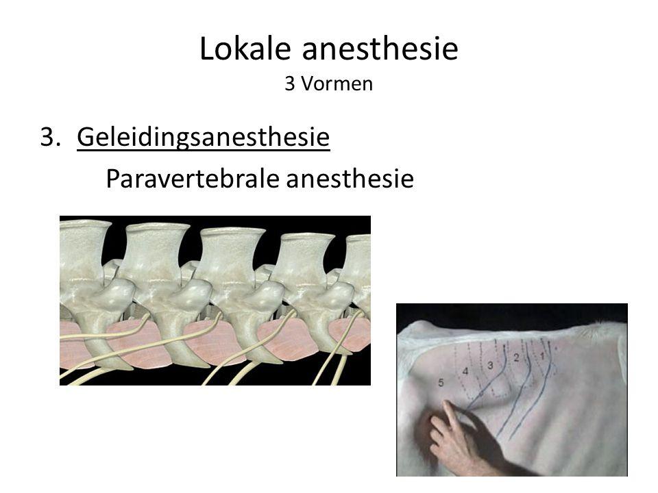 Lokale anesthesie 3 Vormen 3.Geleidingsanesthesie Paravertebrale anesthesie