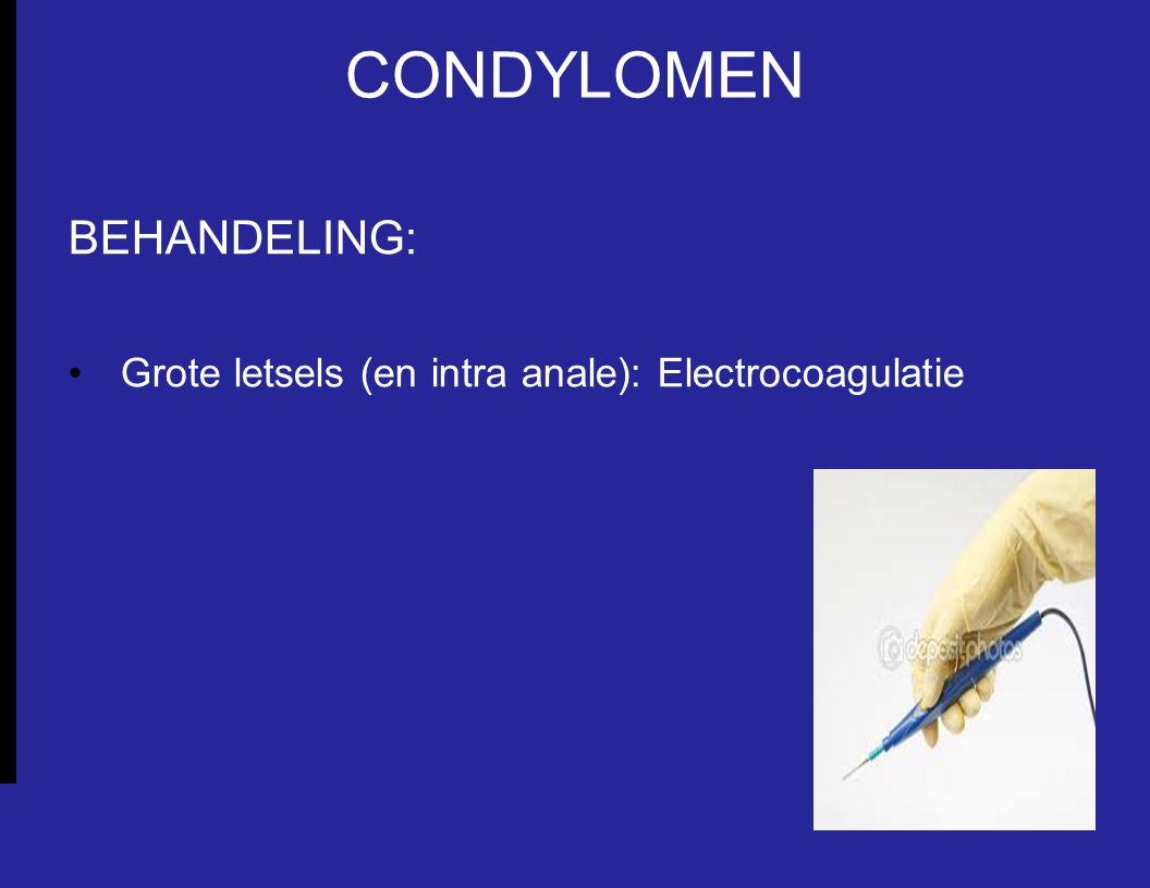 CONDYLOMEN BEHANDELING: Grote letsels (en intra anale): Electrocoagulatie