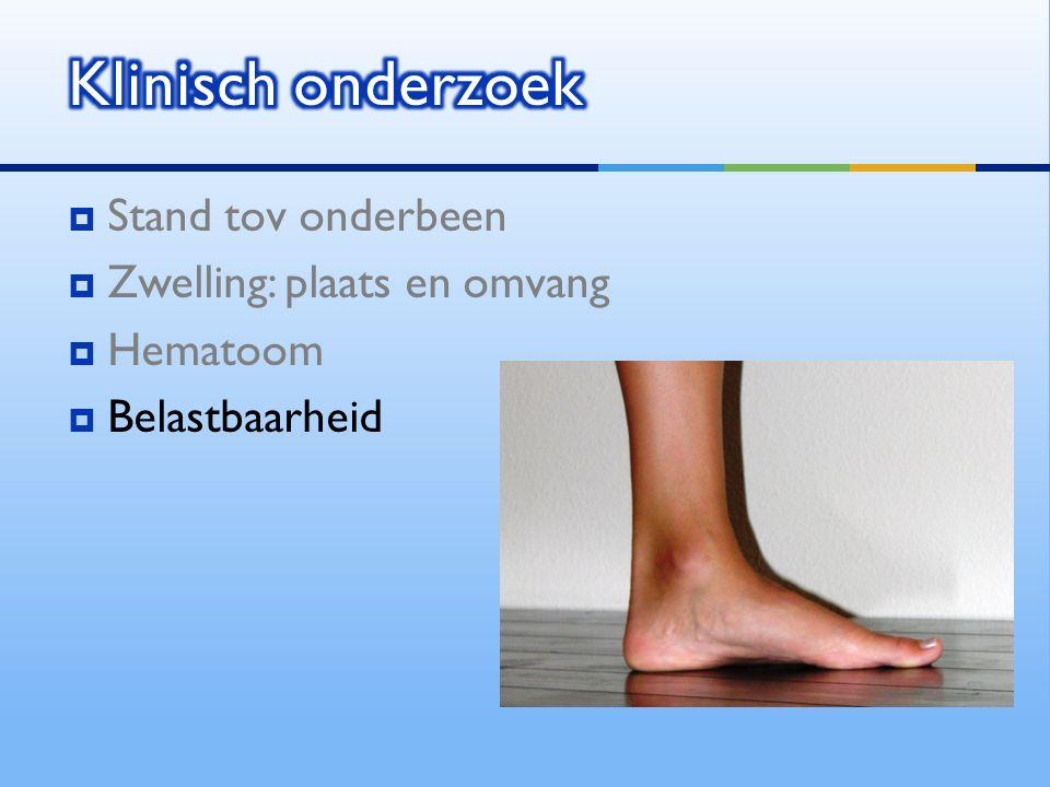  Stand tov onderbeen  Zwelling: plaats en omvang  Hematoom  Belastbaarheid