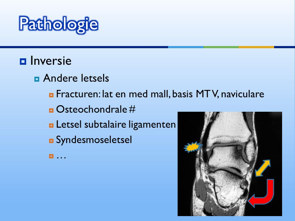  Inversie  Andere letsels  Fracturen: lat en med mall, basis MT V, naviculare  Osteochondrale #  Letsel subtalaire ligamenten  Syndesmoseletsel