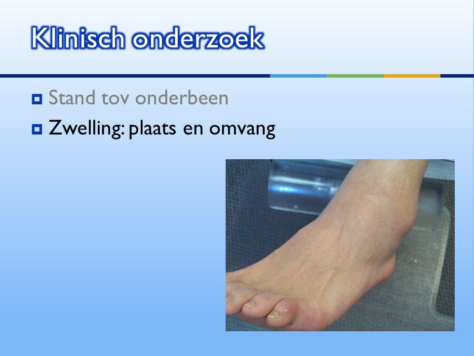  Stand tov onderbeen  Zwelling: plaats en omvang