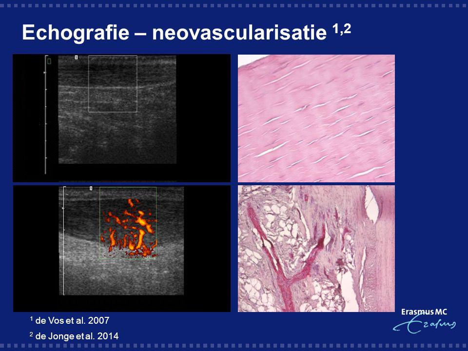 Echografie – neovascularisatie 1,2 1 de Vos et al. 2007 2 de Jonge et al. 2014