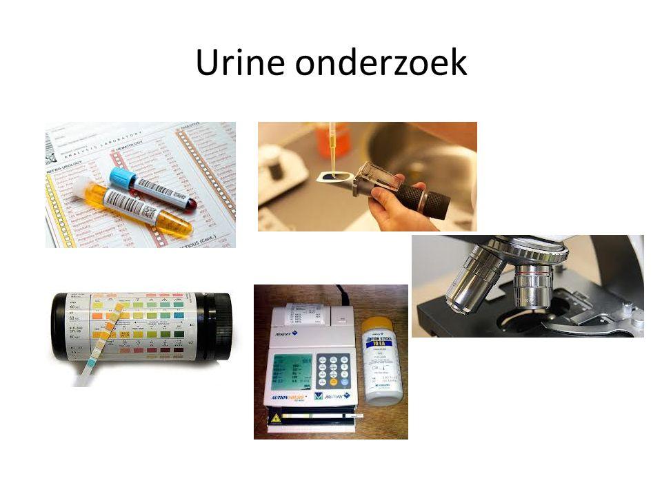 Urine onderzoek