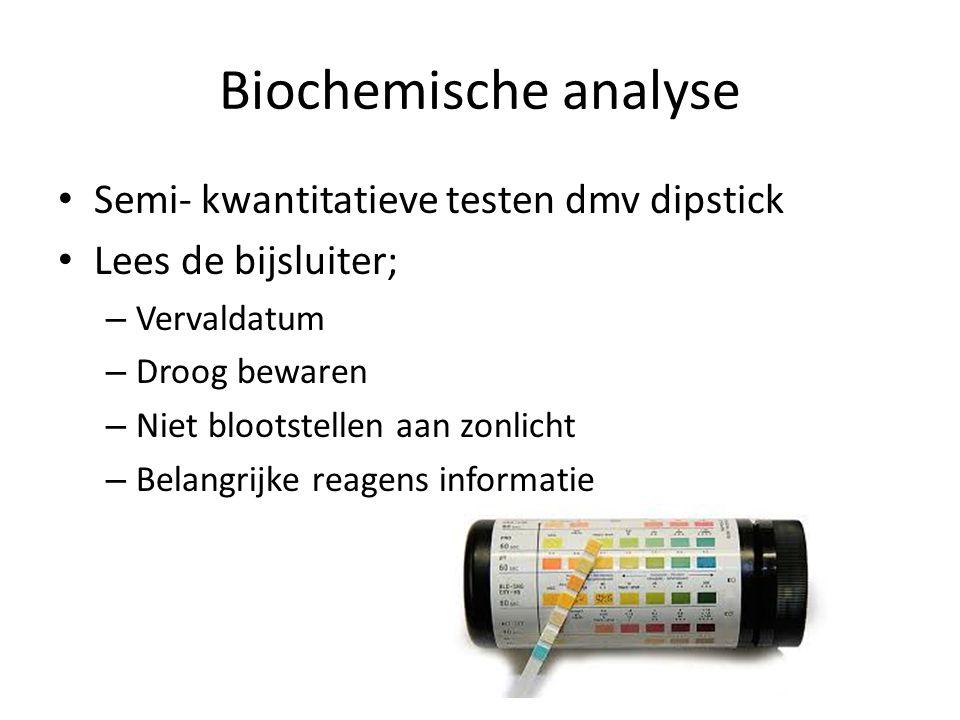 Biochemische analyse Semi- kwantitatieve testen dmv dipstick Lees de bijsluiter; – Vervaldatum – Droog bewaren – Niet blootstellen aan zonlicht – Belangrijke reagens informatie